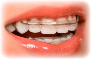 съемная ортодонтическая аппаратура