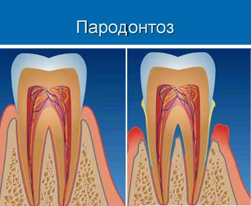 Корни зубов выходят из десны