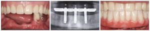 Протезирование Trefoi - фото результата