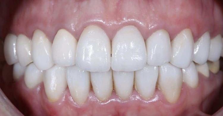 Вид керамических коронок и виниров E-max после адгезивной фиксации в полости рта, цвет Bleach 4