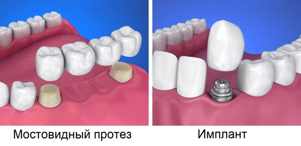 Имплант или мостовидный протез