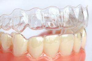 Элайнеры на зубах