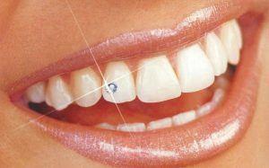 скайс на зубе